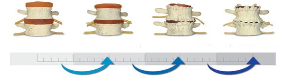 Spinal Degeneration Phases